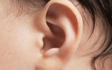 先天耳畸形-听障儿童听力康复会议
