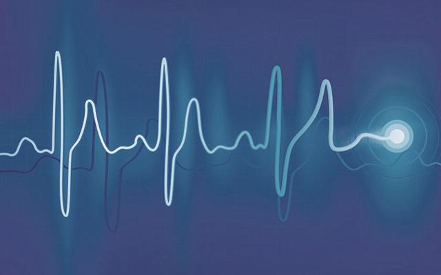 Siemens PLM Software通过噪声试验技术研讨会