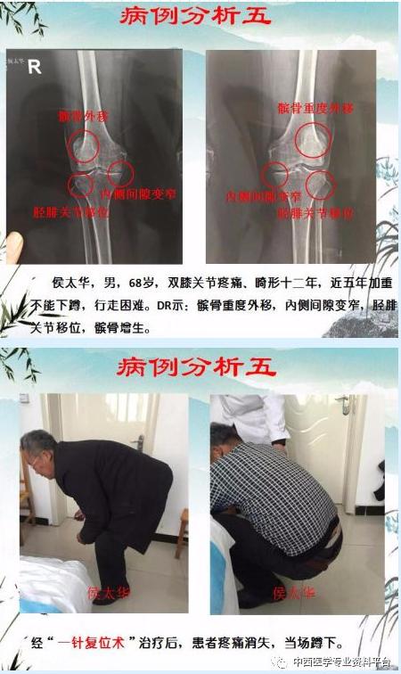 2019第十五期膝关节一针复位术专题高级研修班暨全国第六期松骨术疗法临床实践高级班【12月18日-洛阳站】